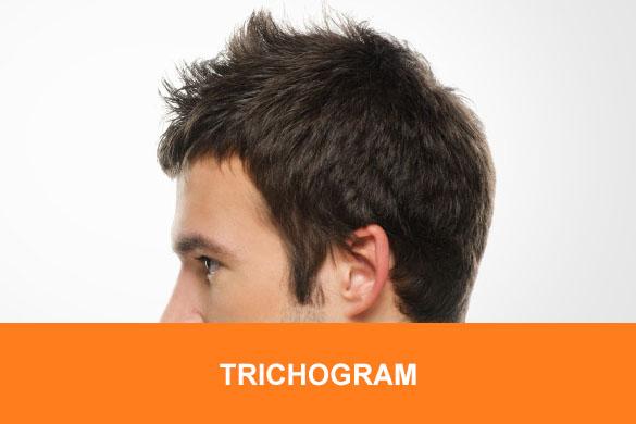trichogram lublin